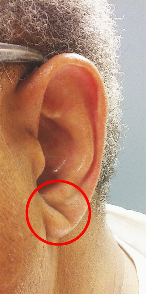 If your ear lobe looks like this, you could be at higher risk of a stroke