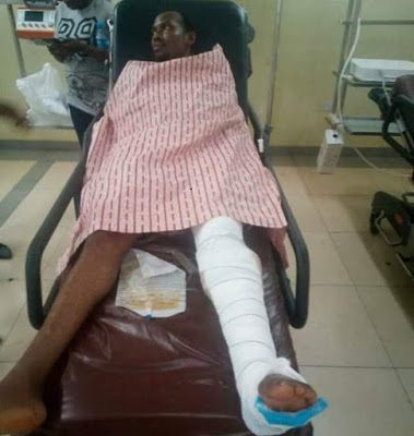 Photos: Young Nigerian man on the verge of losing his leg after he was allegedly shot by a policeman five weeks after his wedding