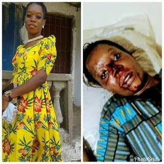 Photo of Young lady almost beaten to death by her boyfriend who is in the army (Photos)