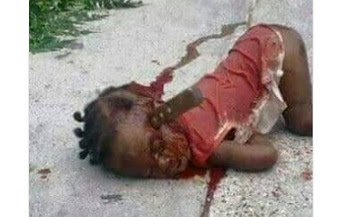 Photo of See what Fulani Herdsmen allegedly did to this girl