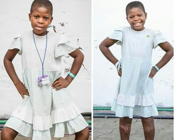 Photo of 11-year-old girl with extreme bow legs undergoes successful surgery (Photo)