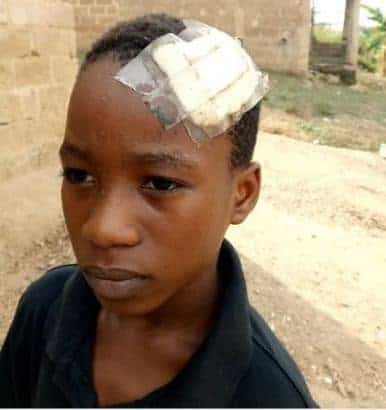 Photo of Nigerian prisons staff breaks son's head for playing football (pictures)