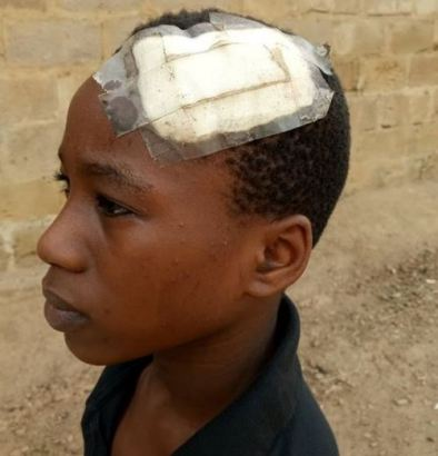 breaks son's head