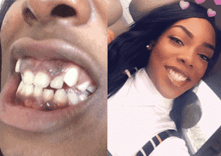 Photo of Incredible transformation photos of a lady born with deformed teeth who underwent dental surgery