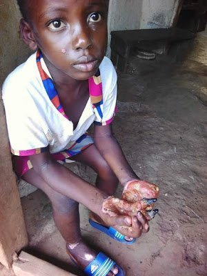 Photo of Liberian woman burns girl's hand with hot oil, locks her up for eating her rice