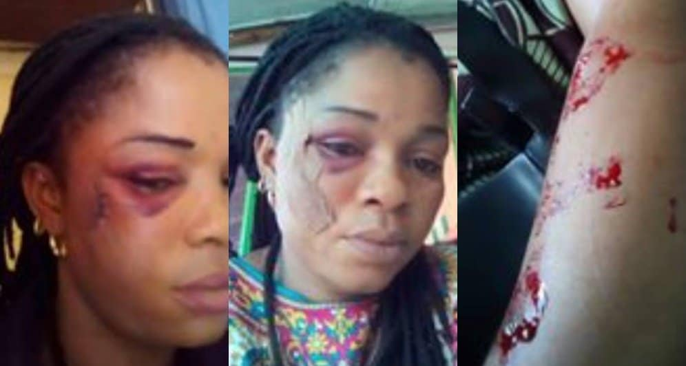 Photo of Man takes wife to swear oath over sex, batters & brutalizes her (Photos)