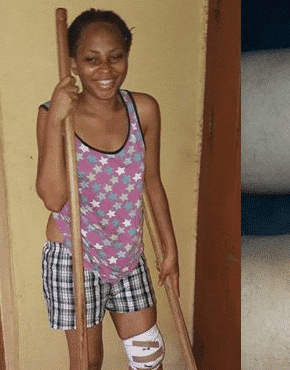 Photo of Lady who survived an accident narrates her experience (pictures)