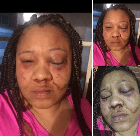 Photo of American woman shares story of how her fiance almost beat her to death (photos)