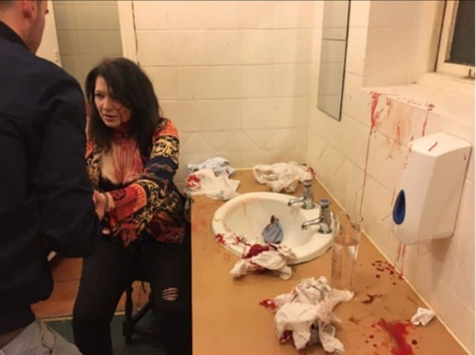 Photo of Jealous Girlfriend Smashes Woman's Head On A Sink For Trying To Snatch Her Boyfriend