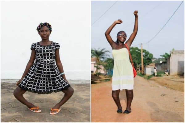 Photo of Life-changing surgery transforms girl who was called a 'witch' because of her bow legs (Photos)
