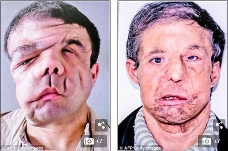 Photo of Man with '3 faces' undergoes second transplant (Photos)