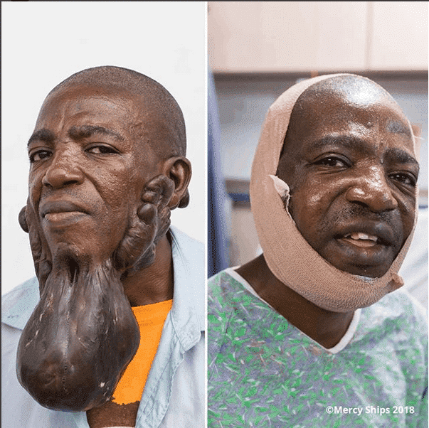 Photo of See transformation photo of a man who had surgery to correct a huge facial tumor