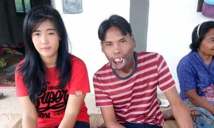 Poor man with facial disability gets the prettiest girl in the village