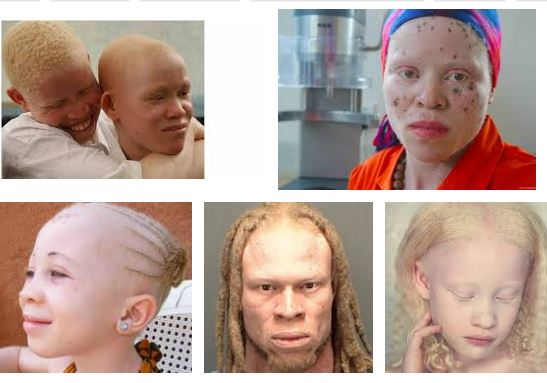 Photo of Albinos in Niger Delta get N4.3bn support from European union