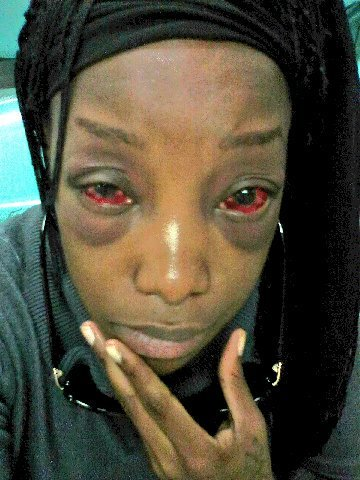 Lady badly beaten by a Taxify driver
