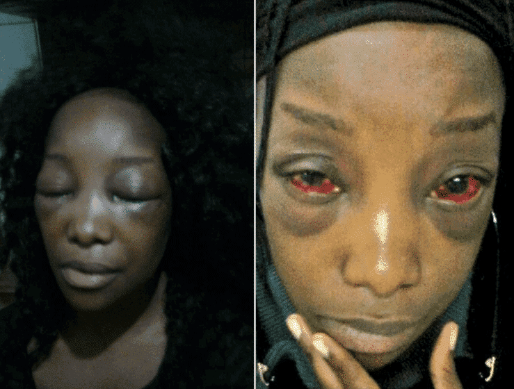 Photo of Lady badly beaten by a Taxify driver in South Africa