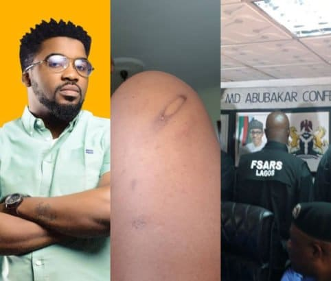 Photo of Man suffers second attack in the hands of Rivers state SARS operatives