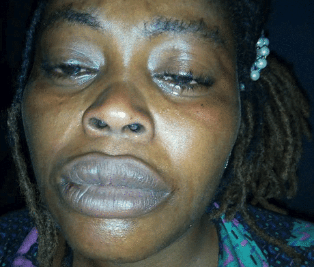 Photo of Domestic Violence victim cries out on ill treatment from husband