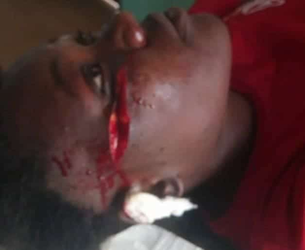 Photo of Nigerian lady cries out after her best friend slashed her face with a razor blade