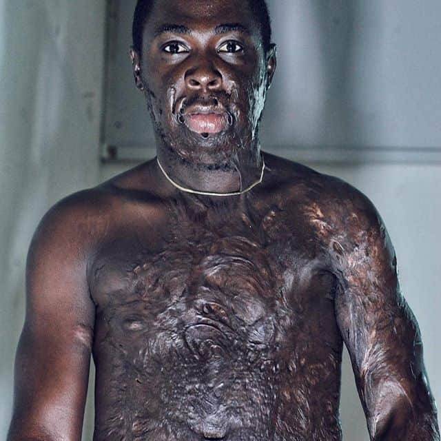 Photo of Nigerian man shares his experience as a burn survivor