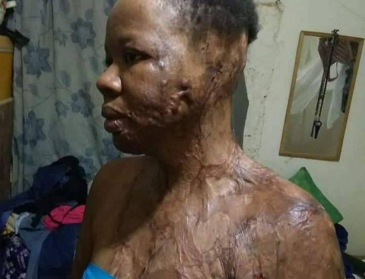 Photo of UNIZIK graduate bathed with acid by an unknown man (Photos)