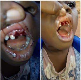 Photo of Teacher breaks a 4 year old Boy's teeth ( Photos)