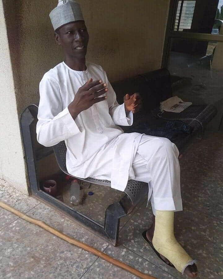 Man who trekked from Yola to Abuja in celebration of Buhari develops leg injury