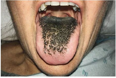 Photo of 55-year-old woman gets Black Hairy Tongue after Car Crash!