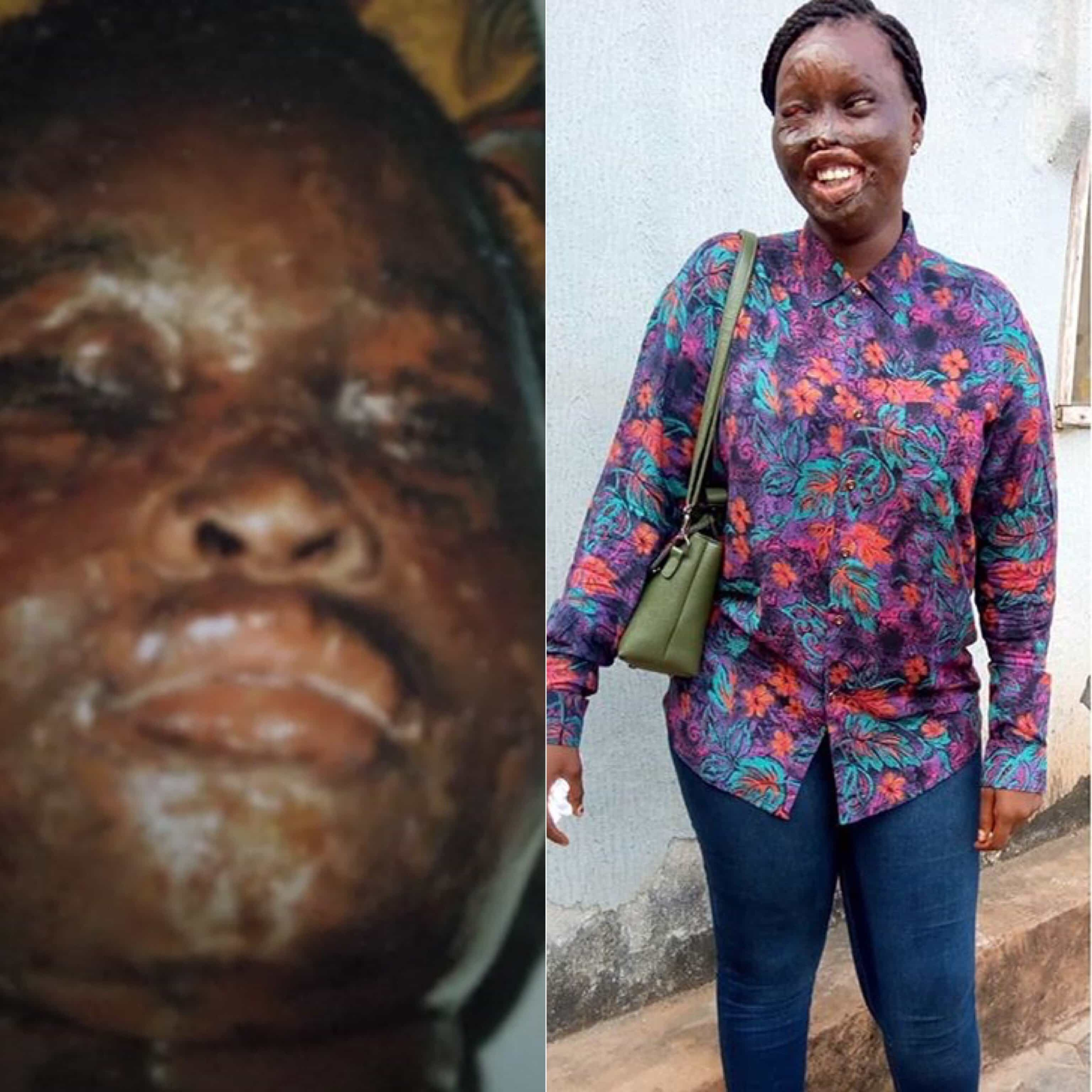 Photo of Exactly today in 2004, I became the victim of an acid bath – Survivor recounts