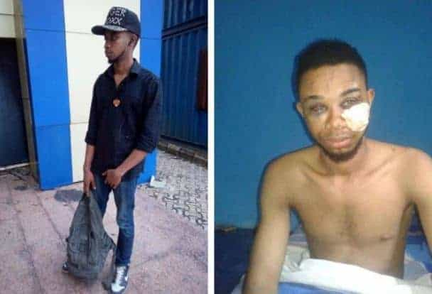 Man narrates how Nigerian police officers tortured him over false accusation