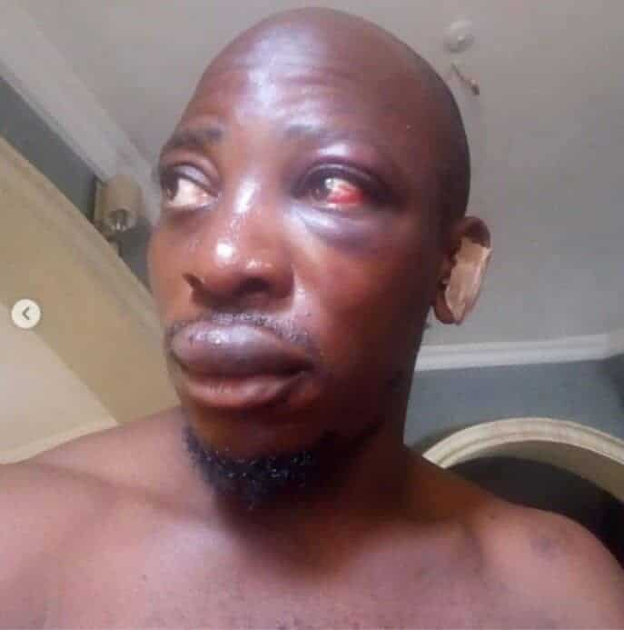 Gospel musician, Jblingzmoney, survives ritualists attack after a battle