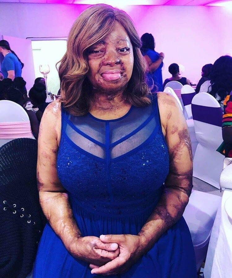 Photo of Kechi Okwuchi undergoes another surgery