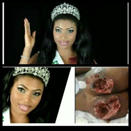 Photo of Ex-beauty queen dies after buttocks enlargement surgery goes wrong (photos)