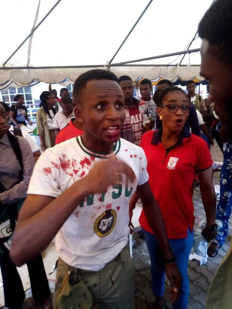 Photo of Youth corper beaten up in Mushin over INEC payment (PHOTOS)