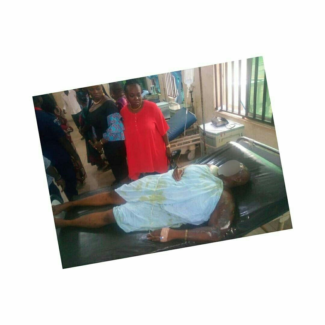 Photo of Angry Man Bathes His Wife With Acid For Demanding A Divorce