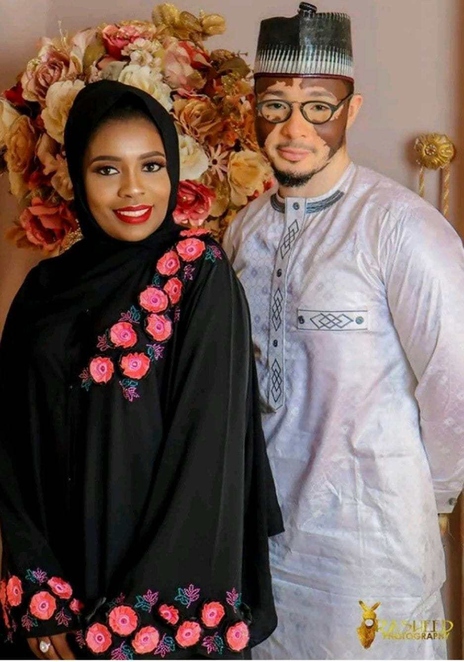 Photo of Nigerian man suffering from Vitiligo marries his hearthrob (Photos)