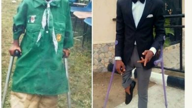 Photo of Nigerian amputee footballer reveals how he became disabled