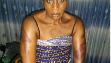 Photo of Kemi Olunloyo shares pictures of injuries sustained after armed robbers raided her house