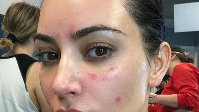 Photo of Kim Kardashian shares pictures of her struggle with Psoriasis