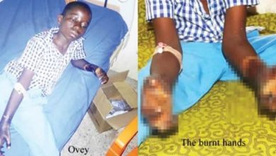 Photo of Why my stepmother burnt my hands – Boy reveals after landing in hospital