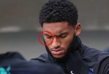 Photo of Joe Gomez spotted with long scratch under his eye after his bust-up with Raheem Sterling (Photos)