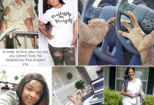 Photo of Lady who got involved in a fire accident at age 4 narrates her ordeal