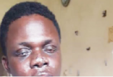 Photo of Taxify driver awaiting youth service loses sight to robbers