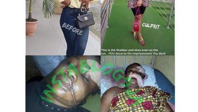 Photo of Lady disfigures her benefactor over N950