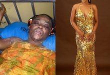 Photo of Burn survivor shares pictures to show amazing transformation