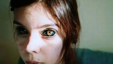 Photo of Model looses sight after tattooing eyeball