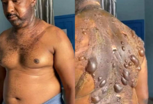 Photo of Wife pours hot water on husband after suspecting he has a side chick