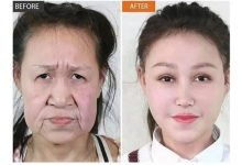 Photo of 15 year old girl bullied at School for looking 50 years older, gets new face after surgery