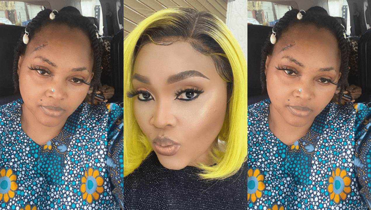 Photo of Mercy Aigbe's new photo causes panic as fans fear for her life