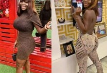 """Photo of """"My yansh don heal"""" – Omohtee declares as she recovers from failed cosmetic surgery (Photos)"""